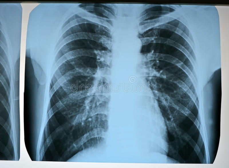 Exploración de la prueba de la pulmonía, radiografía moderna de las radiografías. foto de archivo libre de regalías