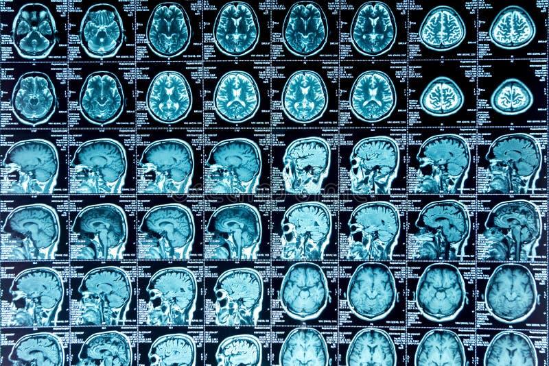 Exploración de MRI del cerebro fotografía de archivo