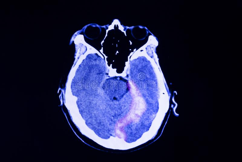Exploración del CT de un paciente con la lesión cerebral traumática foto de archivo