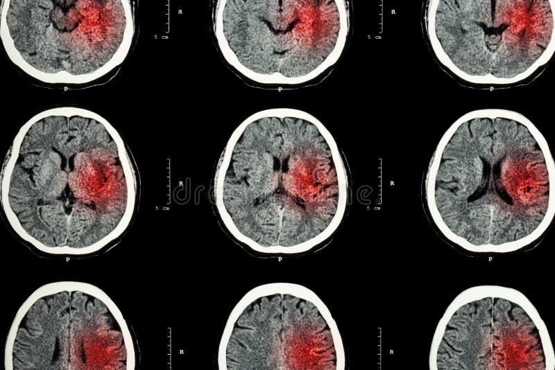 Exploración del CT del cerebro con el área roja (proyección de imagen para el movimiento hemorrágico o el concepto isquémico del  imagenes de archivo