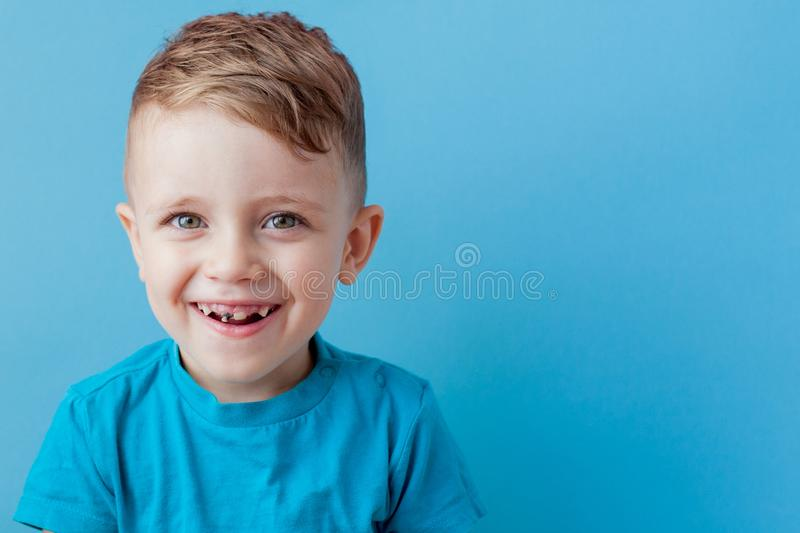Extensive early dental caries and misaligned and spare incisor teeth in upper jaw.  royalty free stock images