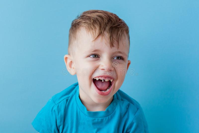 Extensive early dental caries and misaligned and spare incisor teeth in upper jaw.  stock photography