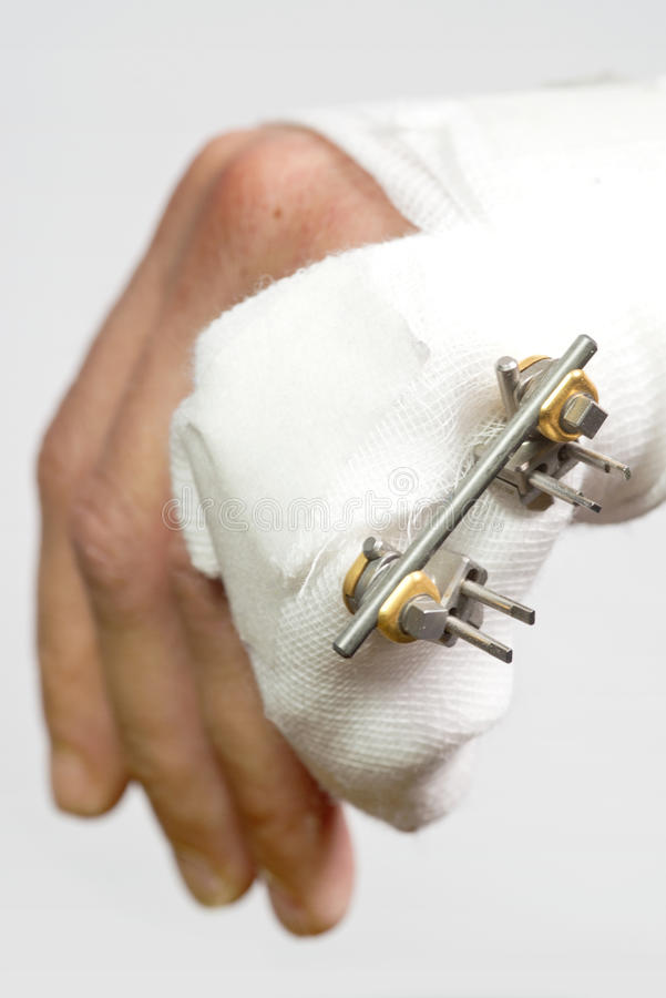 External rig to mend a broken hand. Close up of a Fractured hand with an external rig to mend a fractured pinky finger, four pins sticking outt of a broken royalty free stock photography