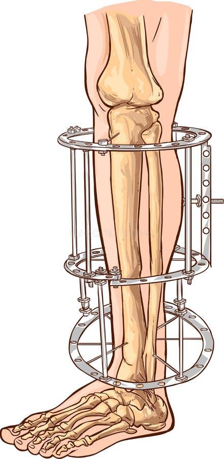 External ringowy fixator ilustracji