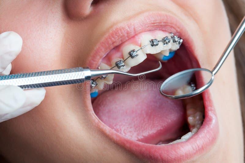 Extrémité étroite de la bouche humaine avec des accolades photos stock