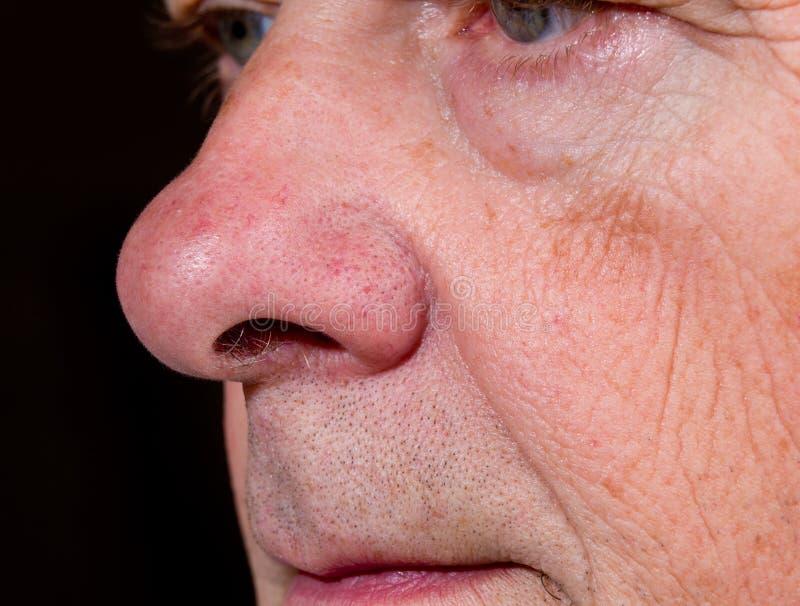 Extrémité proche vers le haut du nez aîné dans la vue de côté photos libres de droits