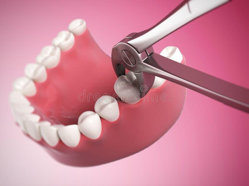 Extração do dente ilustração royalty free