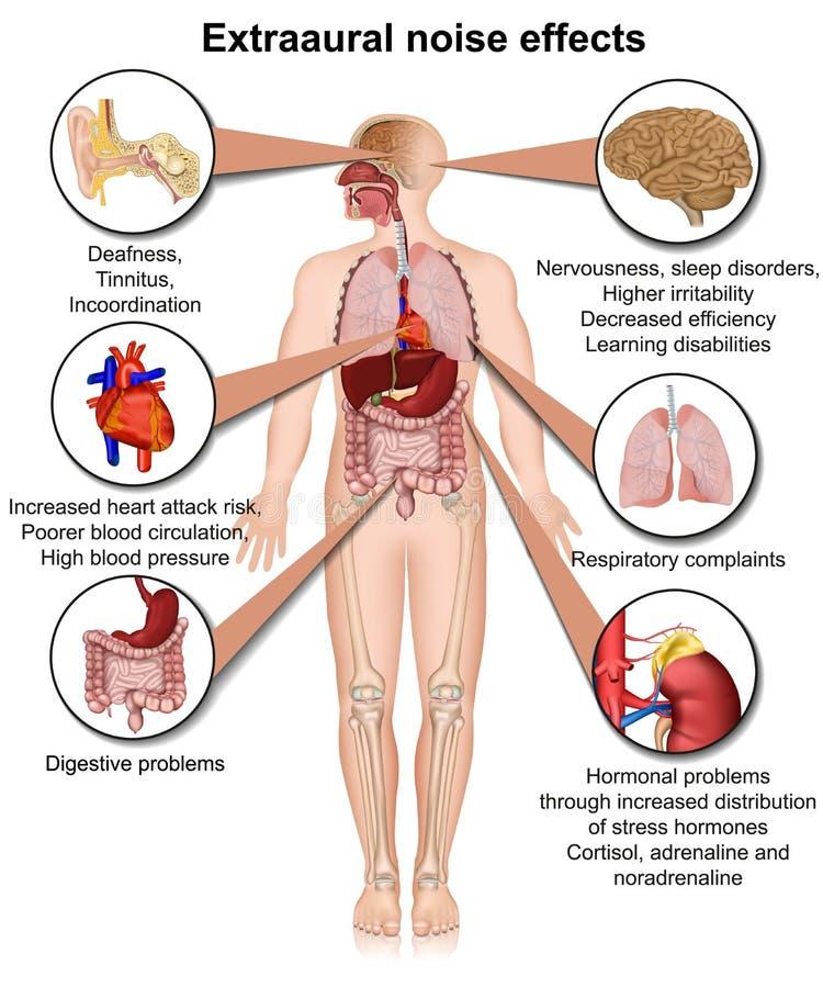 Extraaural vård- effekter av den kroniska medicinska illustrationen för oväsenexponering royaltyfri illustrationer