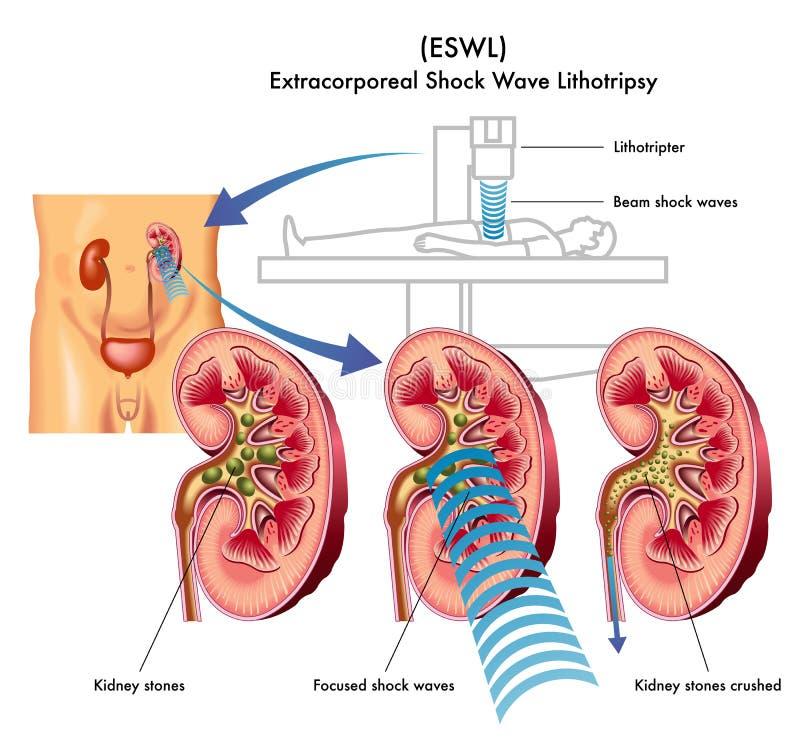 Extracorporeal Druckwelle lithotripsy lizenzfreie abbildung