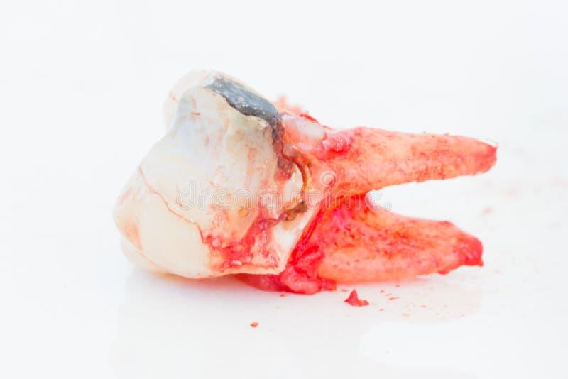 Extractie van rotte tand op witte achtergrond royalty-vrije stock afbeelding