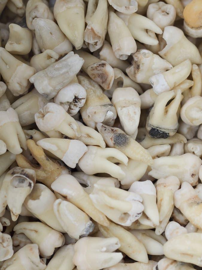 Extrahierte Zähne stockbild