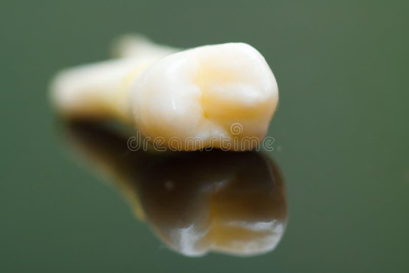 Extrahierter Zahn stockfoto