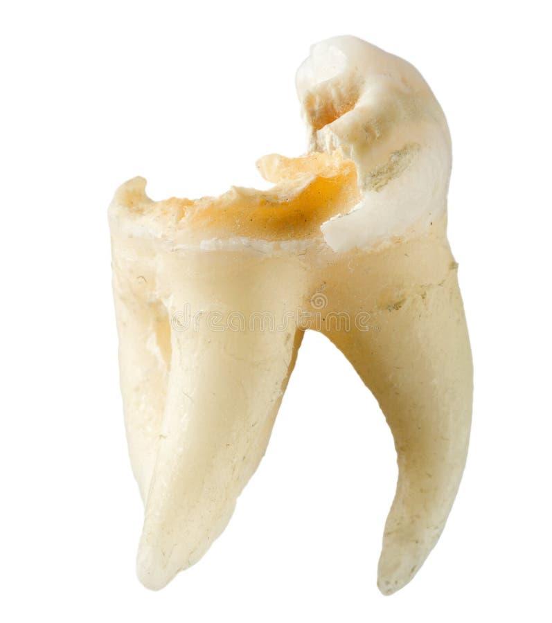 Extrahierter Zahn mit der Karies lokalisiert auf weißem Hintergrund lizenzfreies stockbild