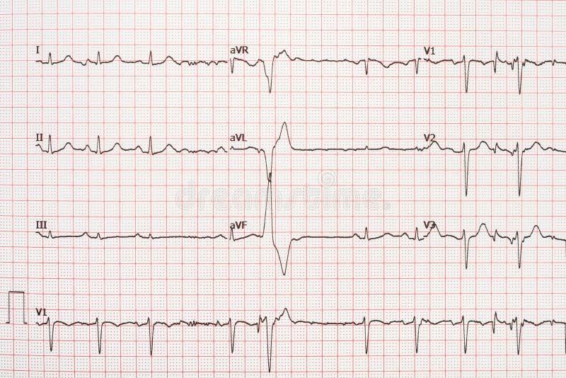 Extrasystole sur le papier d'électrocardiogramme de 12 avances images stock