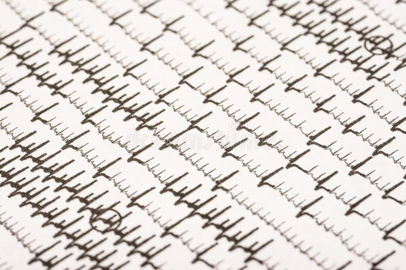 Extrasystoles And Atrial Fibrillation. On Electrocardiogram Record Paper royalty free stock photos