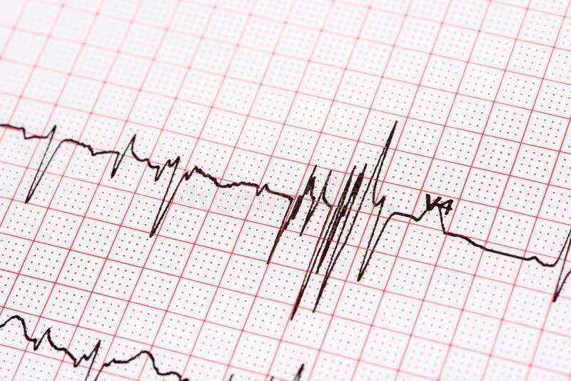 Extrasystoles sur l'électrocardiogramme photographie stock