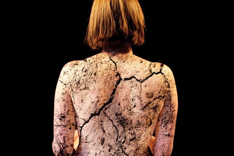 Extreme dry skin stock image