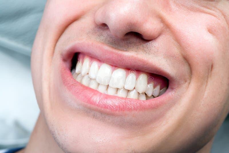 Extremo próximo acima da boca masculina humana que mostra os dentes imagens de stock royalty free