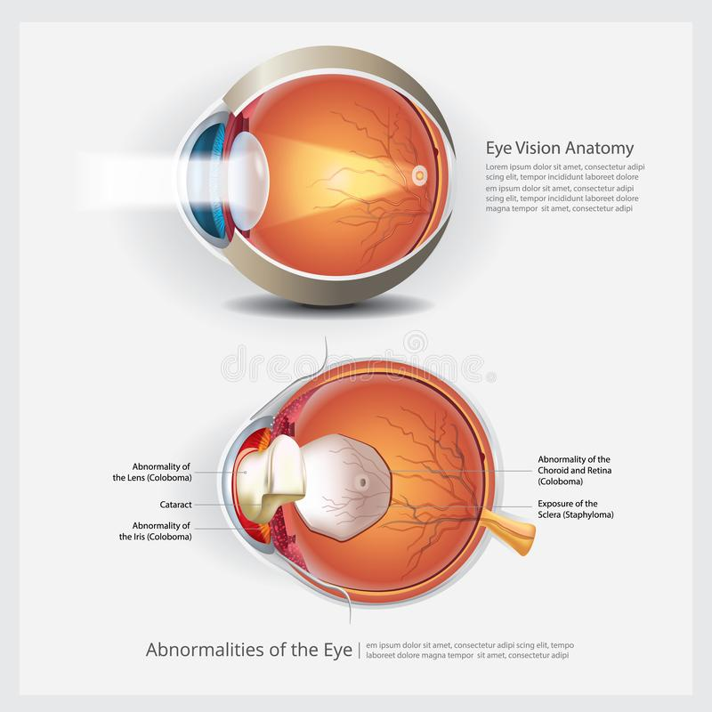 Eye Anatomy with Eye Abnormalities. Vector Illustration stock illustration