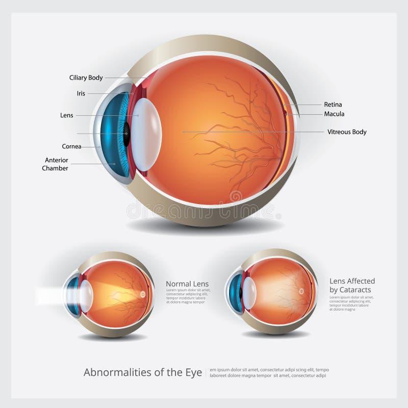 Eye Anatomy with Eye Abnormalities. Vector Illustration stock illustration