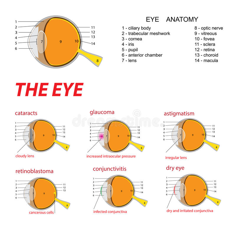 The eye anatomy. Vector illustration of human eye anatomy and diseases vector illustration