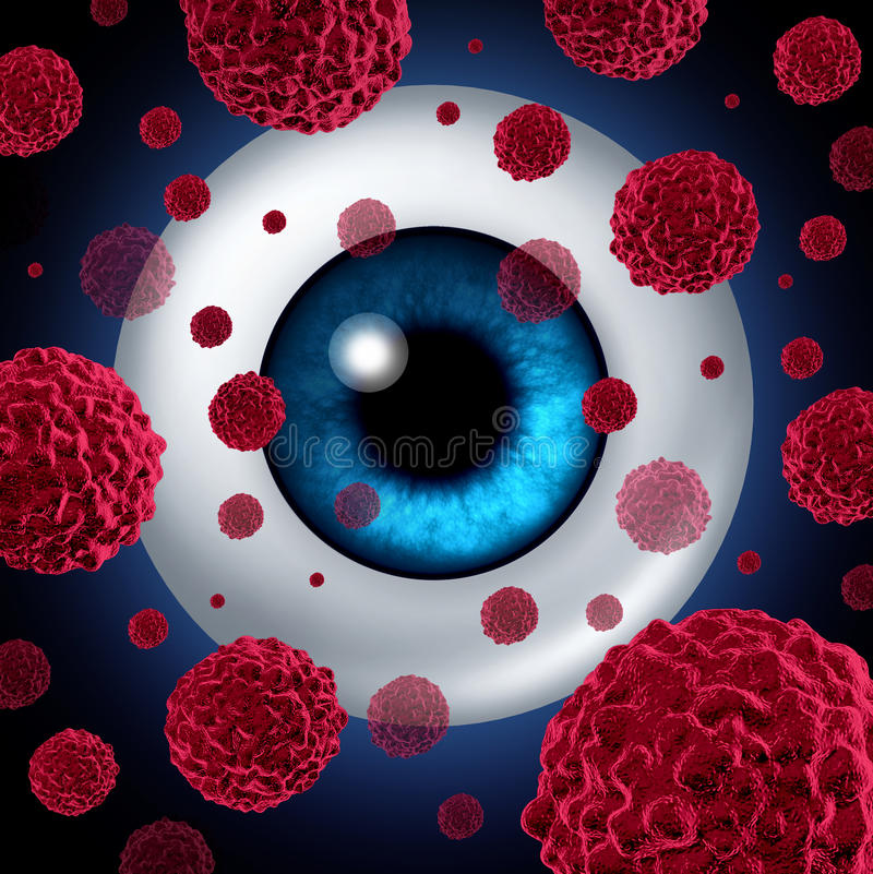 Eye Cancer. Concept or intraocular cancers symbol as a human eyeball with cancerous cells spreading as a health care and medical icon for ocular tumor risk royalty free illustration