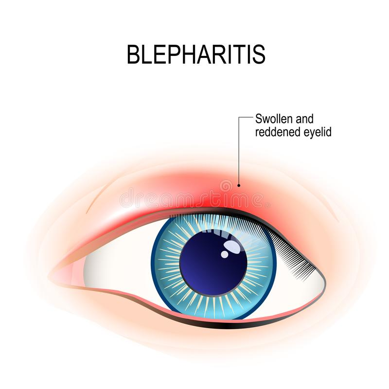 Eye of human. Blepharitis. inflammation of the eyelid. Eye of human. Blepharitis is a inflammation, and reddening of the eyelid. Human anatomy. Vector diagram royalty free illustration