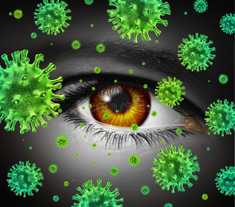 Eye Infection. As a contagious ocular disease transmitting a virus with human vision spreading dangerous infectious germs and bacteria during cold or flu royalty free illustration