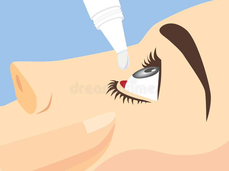 Eye treatment with eye drops. For Redness, Dry Eyes, Allergy and Eye Itching vector illustration