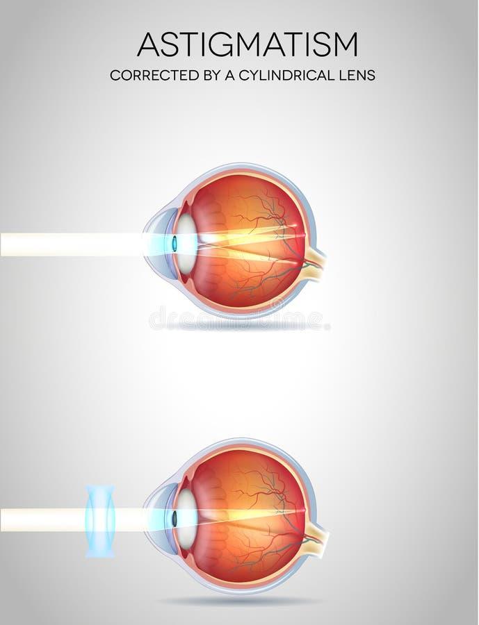 Eye vision disorders royalty free illustration