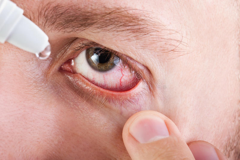 eyedropper medycyna obraz stock