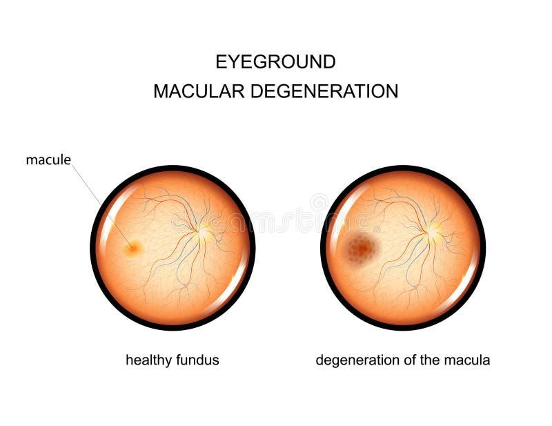 Eyeground degeneração do macula ilustração stock