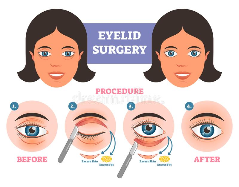 Eyelid surgery procedure before after illuatration with main steps. Excess skin and fat removal. Eyelid surgery procedure before after illuatration with main royalty free illustration