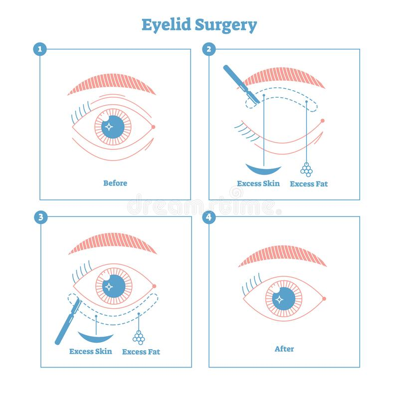 Eyelid surgery procedure scheme illustration. Excess skin and fat removal plastic surgery. Women fashion simple line style design. Eyelid surgery procedure vector illustration