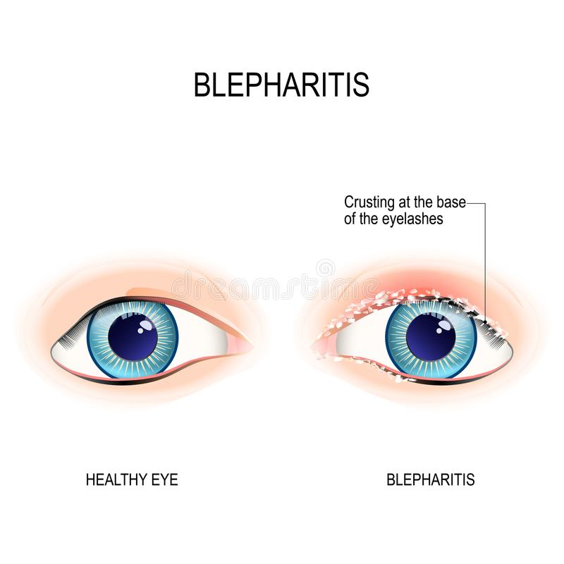 Eyes of human. Blepharitis. Crusting at the eyelid margins. Eyes of human. Blepharitis is a inflammation of the eyelid. Crusting at the eyelid margins base of stock illustration