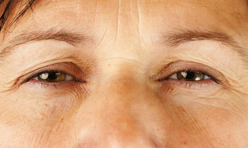 Download Eyes Of Very Sick Or Tired Person Stock Photo - Image: 26542108