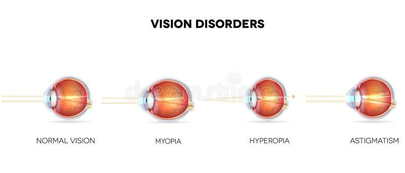 Eyesight disorders vector illustration