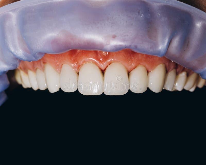 Färdiga keramiska framdelkronor, svart bakgrund 8 tand- fanér för enheter fotografering för bildbyråer