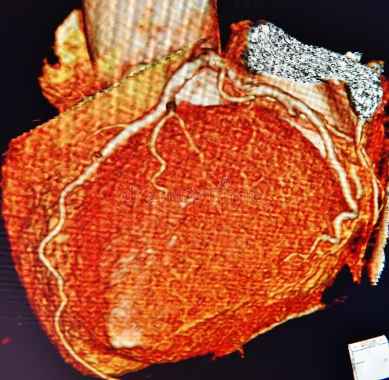 Färgrik angiography för hjärta för Ct-bildläsning 3d royaltyfri fotografi