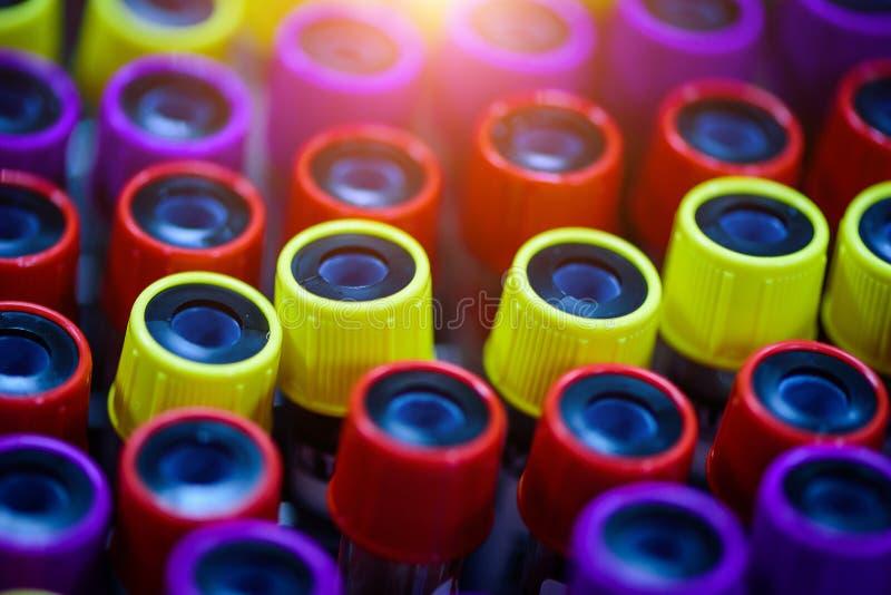 Färgrik provrör med blod i laboratorium arkivbild