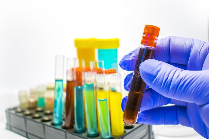 Färgrika laboratoriumprovrör, biokemiblodprov, urinprov, provrör, medicinsk analys, forskningbegrepp, fertilitet r royaltyfri foto