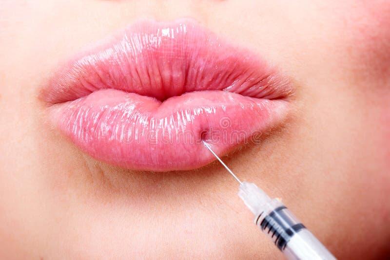 För häleriutfyllnadsgods för ung kvinna injektion royaltyfri fotografi