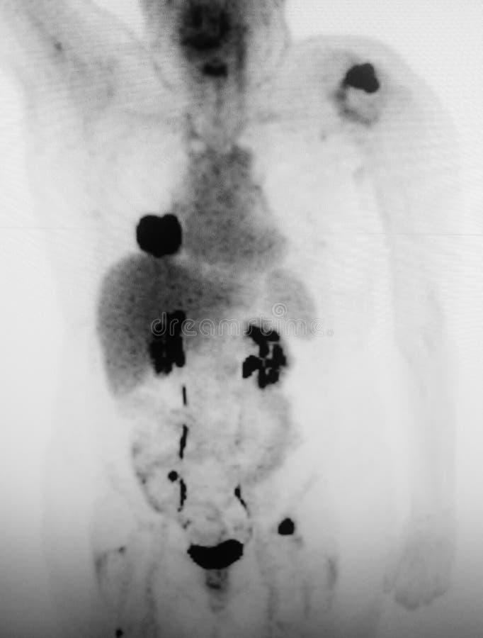 För höger lägre tumör för lunga lobmass för Ct primär arkivfoto