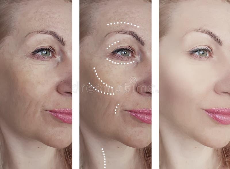 För hudskrynklor för kvinna lyftande hälsa för vuxen borttagning för efter behandlingar för collagecosmetologyregenerering royaltyfria foton