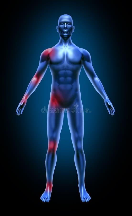 för inflammationskarv för huvuddel smärtar den mänskliga läkarundersökningen strålen x vektor illustrationer