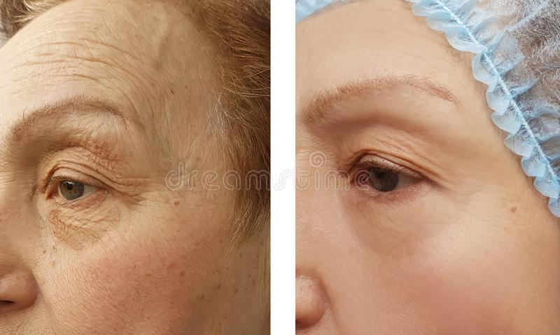 För kvinnaframsida för skrynklor äldre kosmetiska tillvägagångssätt före och efter, terapi som anti--åldras arkivfoton