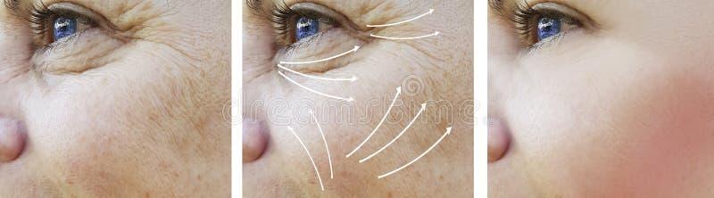 För skrynklaresultat för kvinna ansikts- tillvägagångssätt för utfyllnadsgods för skillnad för effekt före och efter arkivfoto