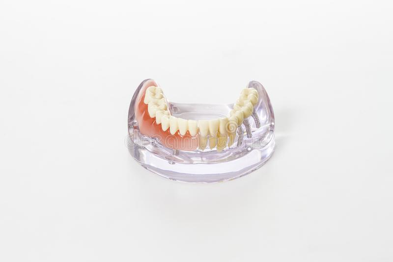 Förberedelse av tand- protes arkivfoto