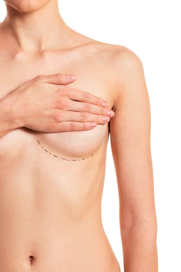 Förberedelse för bröstkirurgi royaltyfria foton