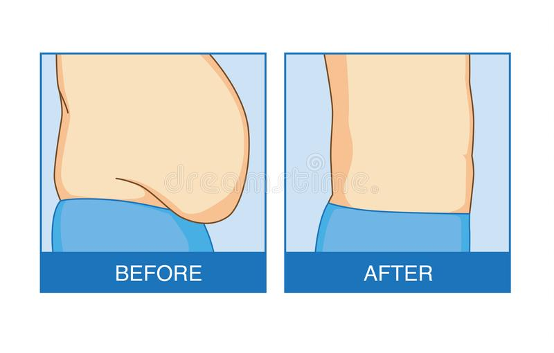 Före och efter av överskott buk- fett som sänker stock illustrationer